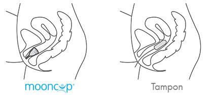 menstruationstasse_positionierunfiGocMQm7mTz7